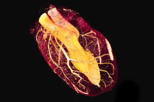 Mouse heart - heart perfusion with microfil